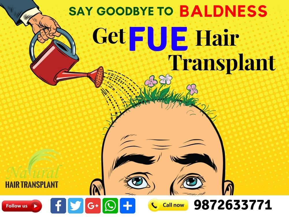 say Good bye To Baldness  Get FUE hair... - Natural Hair Transplant | Facebook